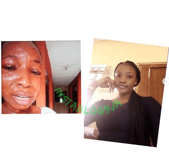 Student Allegedly Bites Off Her Roommate's Ear In Osun University