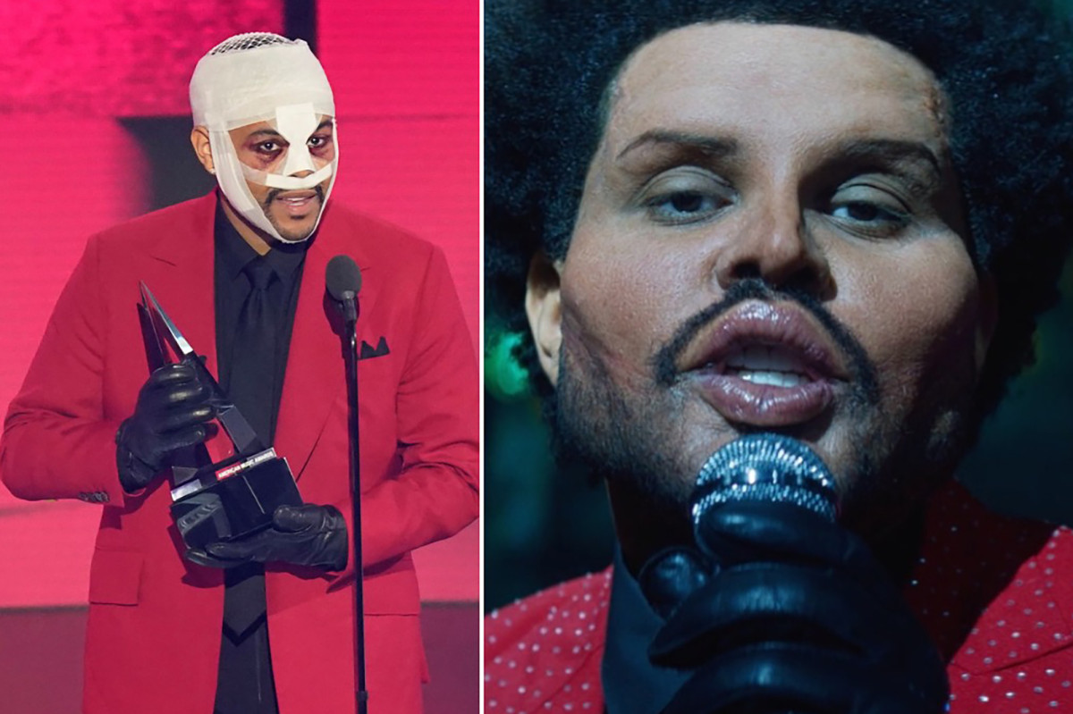 Canadian Singer The Weeknd Shows Off New Grotesque Look In Music Video