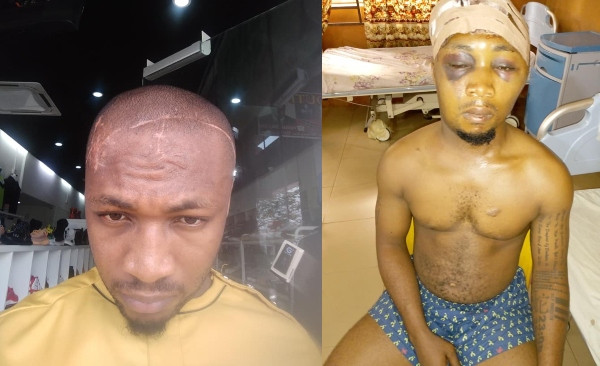 Malaysian-Based Nigeria Narrates How He Was Almost Murdered By His Own Brother
