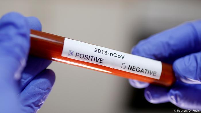 Test de coronavirus, hospital Valencia. / Img informaValencia.com