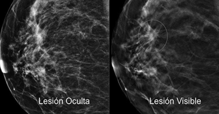 Detección y estadios del cáncer de mama. Img. elsevier