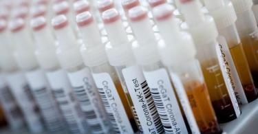 Corona-Antikörper-Tests haben an Schulen undSachsen keine Infektionen gezeigt. Foto: Marijan Murat/dpa/Symbolbild