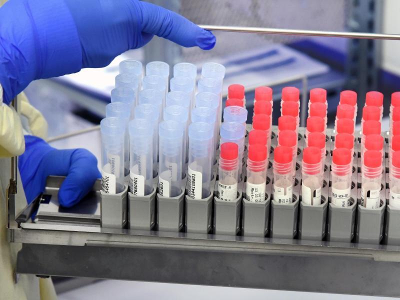 Ist die Corona-Mutante B.1.1.7 tödlicher als die ursprüngliche Virusvariante? Nach jüngsten Studien gibt es dafür keine Belege. Foto: Waltraud Grubitzsch/dpa-Zentralbild/dpa