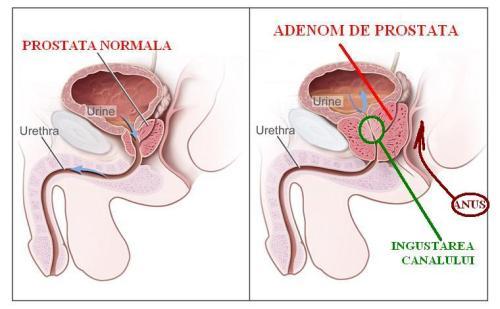 Prostată - Wikipedia
