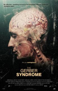 gerber1