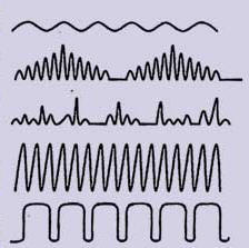 Breathing Modes: Eupnea, Cheyne-Stokes, Biot's, Kussmaul or Apneusis