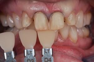 Case 13 emax veneers 710  InHouse Dental Studio