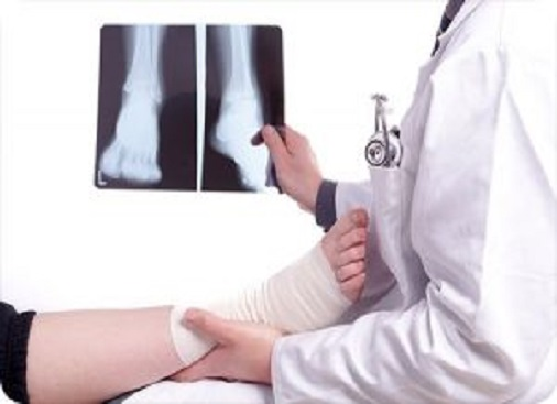 Fracture after accident