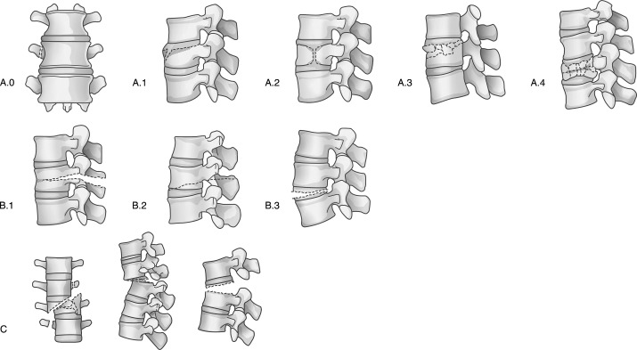 Do thoraco-lumbar spinal injuries classification systems