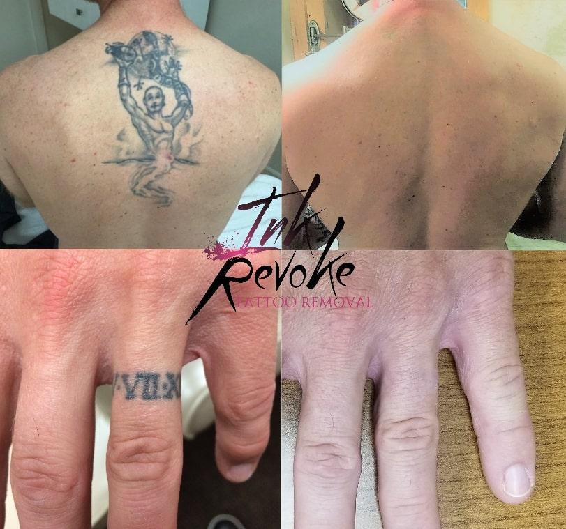 Ink Revoke tattoo removal boulder