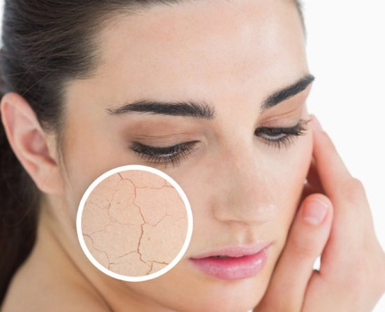 Image result for dry skin problem -  indian face
