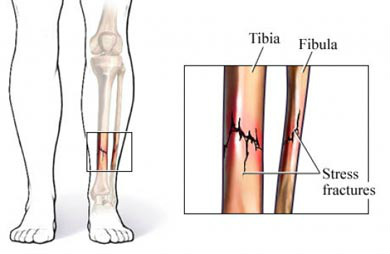 diagram of tibia stress fracture tele wiring picture lower extremeties - leg fractures and fyzical therapy & balance centers ...