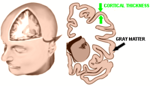 Cortical Thickness