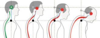 head forward posture defects