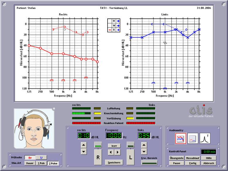 OTIS audiometer