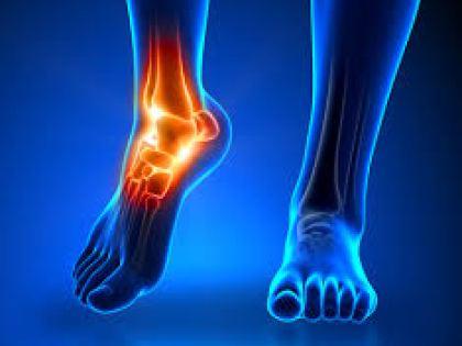 Fisioterapia y esguince de tobillo (I)