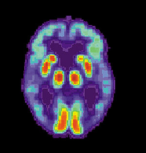 Sharing of Data Leads to Progress on Alzheimer's