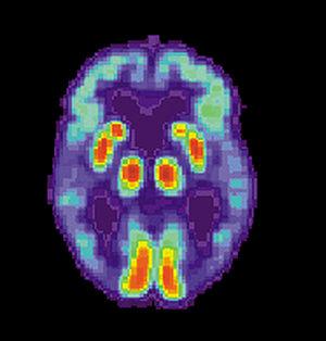 PET scan of a human brain with Alzheimer's disease