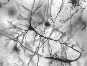 Golgi stained pyramidal neuron in the hippocam...
