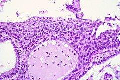 Cervical Correlation Case 2, Biopsy