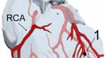Transforming Scar Tissue Into Beating Hearts: The Next Instalment