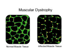 In affected muscle the tissue becomes disorganized and the concentration of dystrophin (green) is greatly reduced.