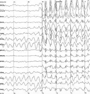 EEG shows abnormal activity in some types of s...