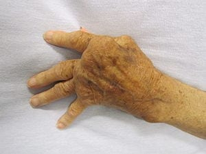 New strategy prevents rheumatoid arthritis in mice