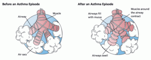 300px-Asthma_before-after