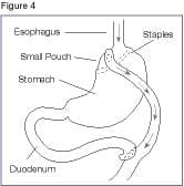 Roux-en-Y_gastric_bypass
