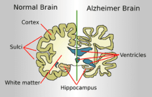Scientists Develop Early-Warning System for Alzheimer's Disease