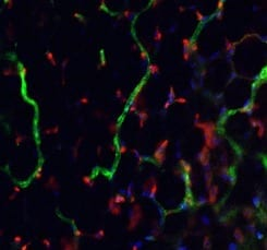 Researchers Step Closer to Custom-building New Blood Vessels