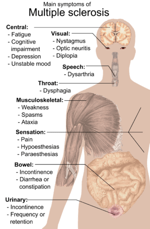 300px-Symptoms_of_multiple_sclerosis