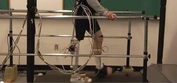 Researchers Seek to Control Prosthetic Legs with Neural Signals