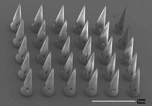 microneedles-300_tcm18-110963 (1)
