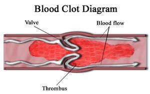 300px-Blood_clot_diagram