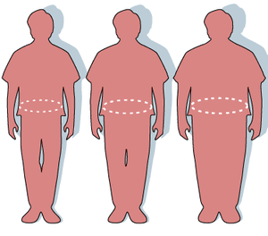 New research shows obesity is an inflammatory disease