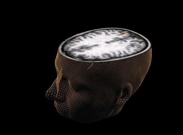 brain (1)