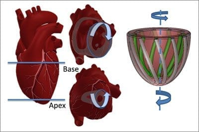 The heart circulates blood as if it were wringing a towel. The bottom twists in a counterclockwise direction while the top twists clockwise. On the right is the team's model of the heart, showing tube-like pneumatic artificial muscles (PAMs) that mimic the heart's striated muscle fibers. Credit: Harvard's Wyss Institute and SEAS.