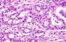 Early Pancreatic Cancer Diagnosis - 97% accuracy but 5 years away