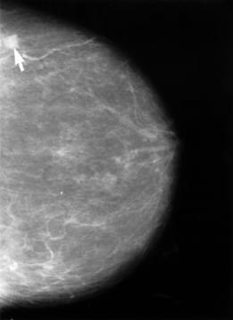The arrow on this mammogram points to a small cancerous lesion. A lesion is an area of abnormal tissue change (Photo credit: Wikipedia)