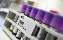 New tuberculosis test - no more false positives
