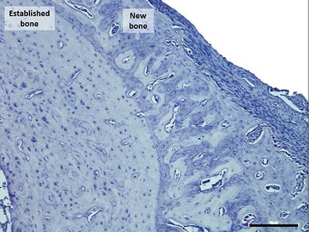 The muscle pacing method used in the study saw the rats gain 30 percent of bone within the targeted areas
