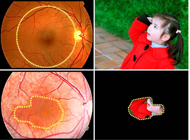 Images of normal (above) and diseased retinas. Patients with MFRP mutations, a cause of retinitis pigmentosa, lose the function of most retinal cells, particularly at the periphery of the retina, leaving them with drastically reduced vision. Personalized gene therapy, using iPS cells, may offer a way to correct this genetic disorder. (Image credit: Lab of Stephen H. Tsang, MD, PhD/Columbia University Medical Center.)