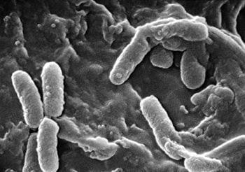 Scanning Electron Micrograph of Pseudomonas aeruginosa (Photo credit: Wikipedia)
