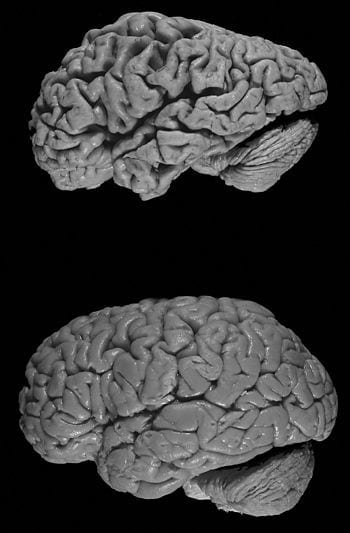"""Healthy brain (bottom) versus brain of a donor with Alzheimer's disease. Notable is the """"shrink"""" that has occurred in Alzheimer's disease; the brain was decreased in size. (Photo credit: Wikipedia)"""