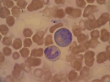 English: Toxic granulation in two white blood cells, bone marrow aspiration. (Photo credit: Wikipedia)