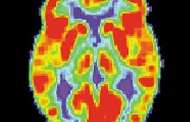 Memory loss associated with Alzheimer's reversed for first time