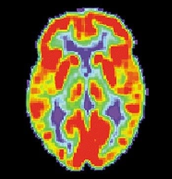 English: This image shows a PiB-PET scan of a patient with Alzheimer's disease on the left and an elderly person with normal memory on the right. Areas of red and yellow show high concentrations of PiB in the brain and suggest high amounts of amyloid deposits in these areas. (Photo credit: Wikipedia)