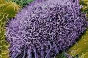 'Huge breakthrough' in understanding how the immune system recognises cancer